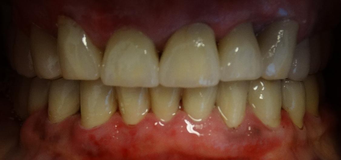 Zähne nach der Zahnbehandlung