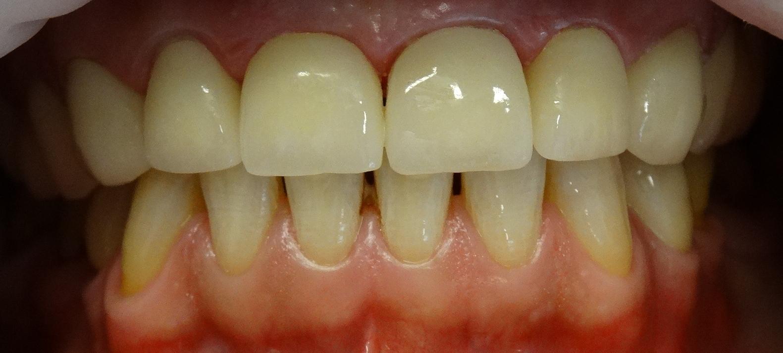 Oberkiefer nach der Zahnbehandlung