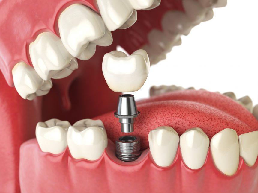 Implantatschraube, Implantatkopf und Implantatkrone